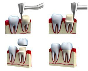 Diagram showing how a tooth is prepared for a dental crown