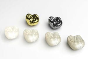 Different types of dental crowns on a white background