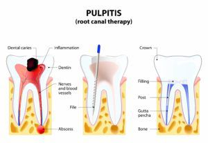 A series of computerized images showing the process of a root canal