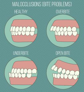 Malocclusion diagram