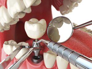 Dental implant placement procedure