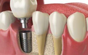 Rendering of Dental Implants