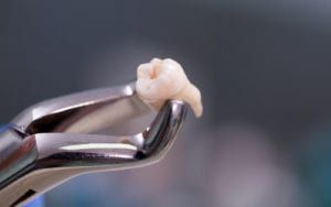 Forceps holding extracted tooth